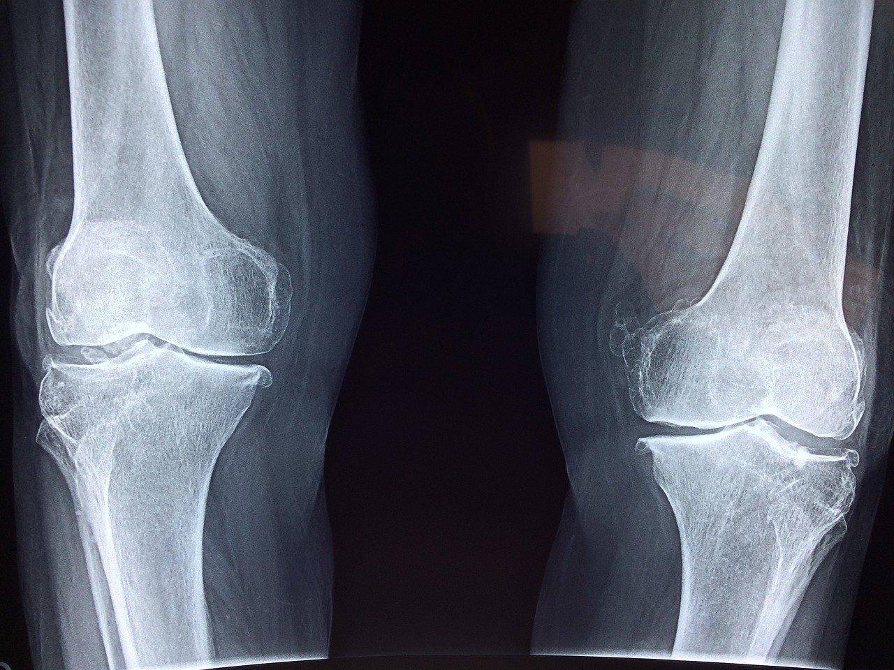 膝が痛い人のレントゲン